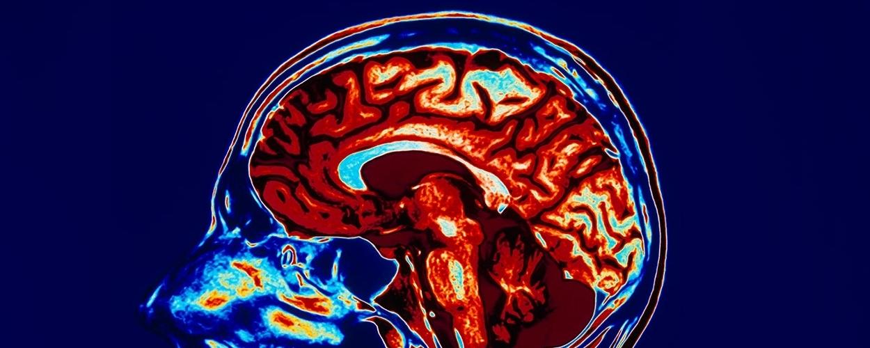Epilepsy-in-the-elderly